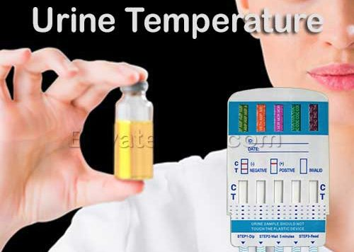 Urine Temperature
