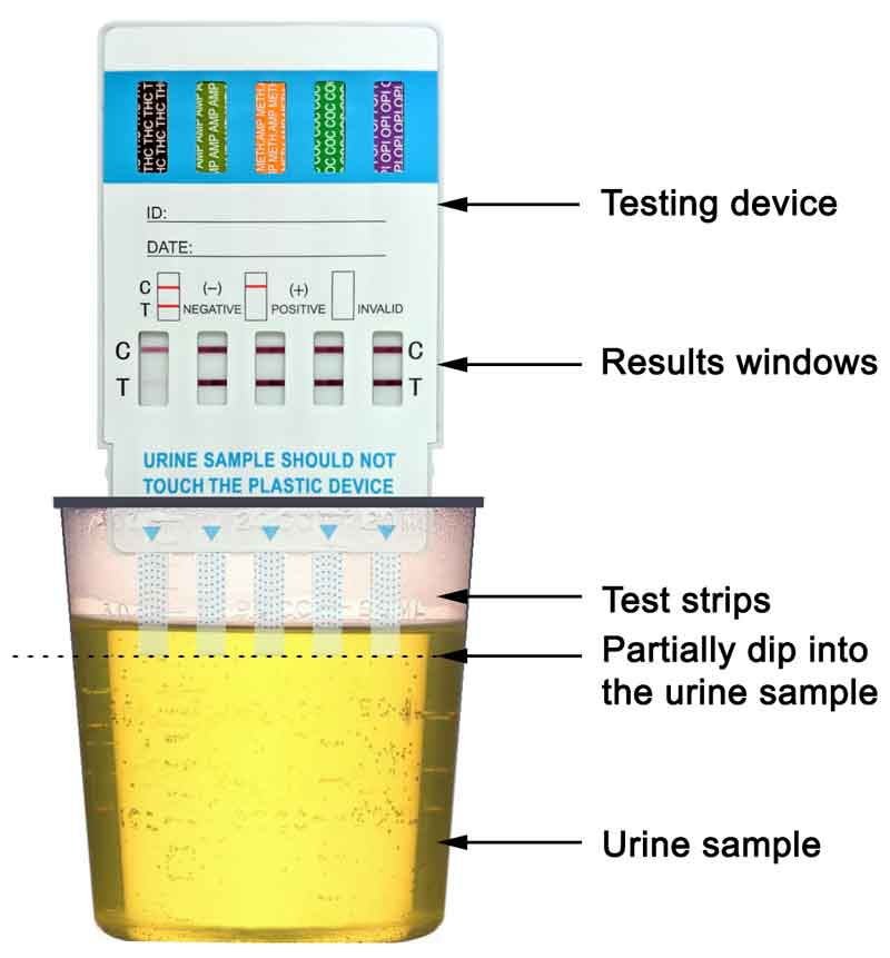 What is a urine drug test